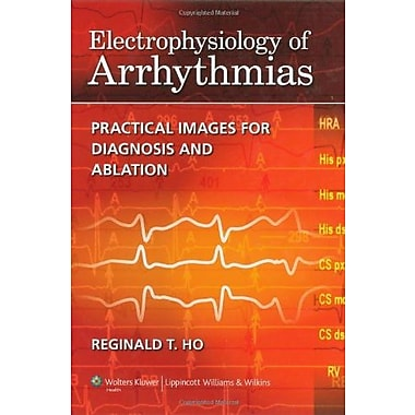 Electrophysiology of Arrhythmias: Practical Images for Diagnosis and Ablation, New Book (9781605475905)