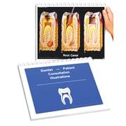 Spiral Bound Dental Consultation Flip Chart