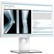 "Dell™ Medical Review 21.5"" Widescreen Flat Panel Monitor, White"