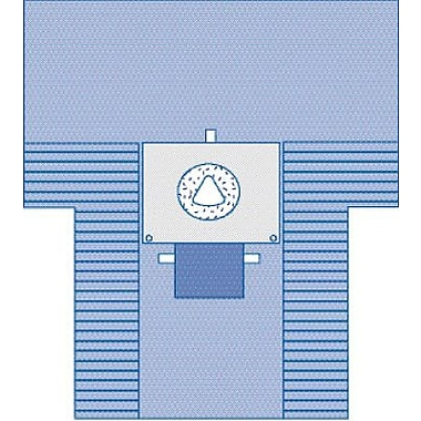 Medline Caesarean Section Surgical Drapes with Pouch and Fenestration, 121in. L x 102in. W