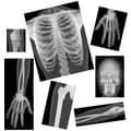 Roylco® True To Life Human X-Ray