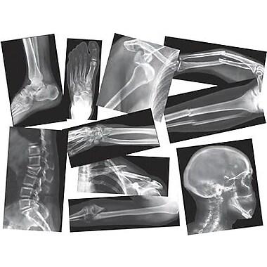 Roylco® Broken Bones X-Rays