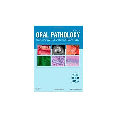 Oral Pathology: Clinical Pathologic Correlations, 6e