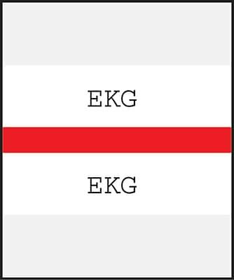 Medical Arts Press® Standard Preprinted Chart Divider Tabs; EKG, Red