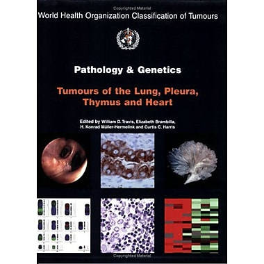 Pathology and Genetics of Tumours of the Lung, Pleura, Thymus and Heart(IARC WHO Classification of Tumours) (9789283224181)