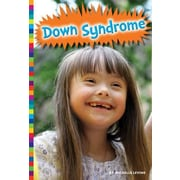 Down Syndrome, Hardcover (9781607534815)
