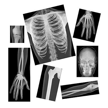 Roylco – Radiographies réalistes d'humaines R5911, 18/paquet