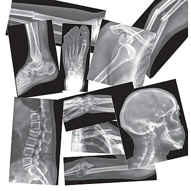 Roylco – Radiographies de fractures R5914, 15/paquet