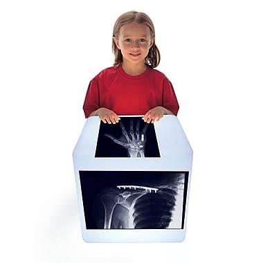 Roylco – Radiographies d'os réparés R59255, 28 morceaux