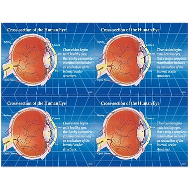 MAP Brand Preventive Laser Postcards Cross Section of Eye