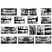 Roylco Dental X-rays, 15/Set (R-59269)