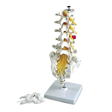 AWW A76-5 Lumbar Spinal Column with DorsO-Lateral Prolapsed Disc (AWW713)