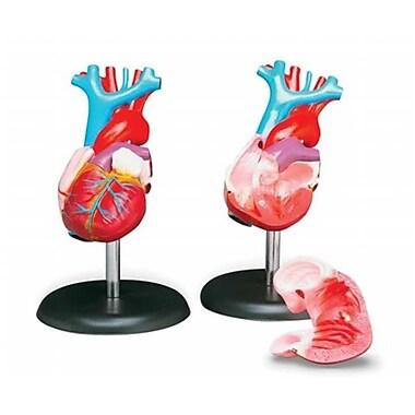 Anatomical Chart Company Budget Life And Size Heart Model (RTL162318)