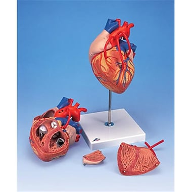 AWW Heart with Bypass 2 Times Life-Size 4-Part (AWW1299)